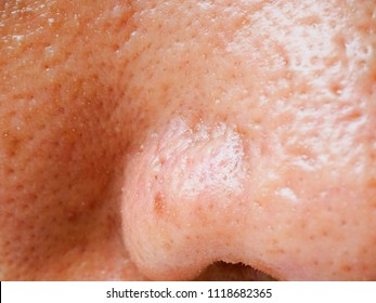 Pimple and acne on face skin, zoom macro.