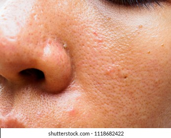 Nose Zoom Images, Stock Photos & Vectors | Shutterstock