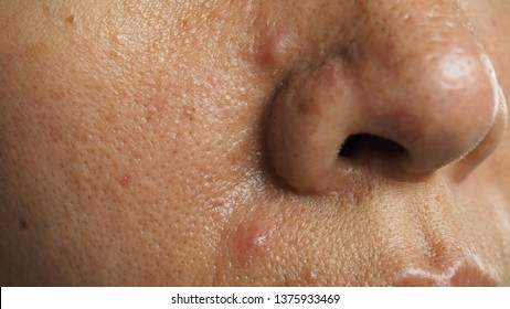 Pimple and acne on face skin and nose, zoom macro. Oily pore skin.