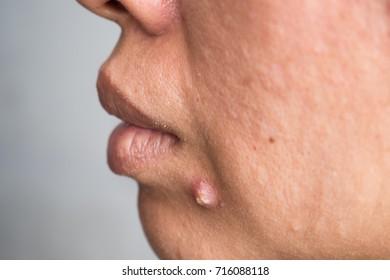 pimple extreme on human skin, large pimple, macro