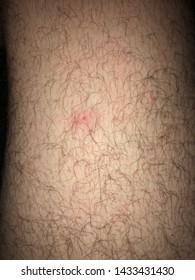 Pimple on hairy leg hair