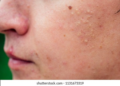 pimples on the face of a man close-ups
