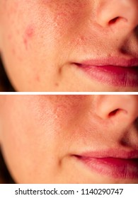 pimples on the skin of the girl close-up before after