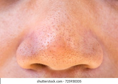 Pimples on the skin of men's nose. Texture