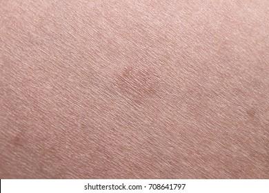 Pityriasis Rosea on bicep arm