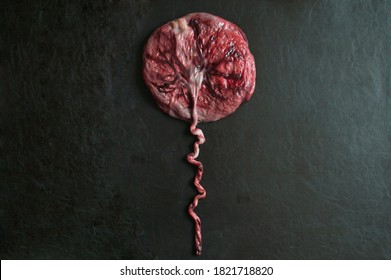placenta simulating a balloon on black background