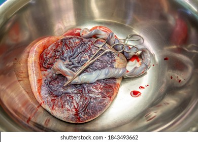 a placenta with umbilical cord is in a silver saline bowl after a birth