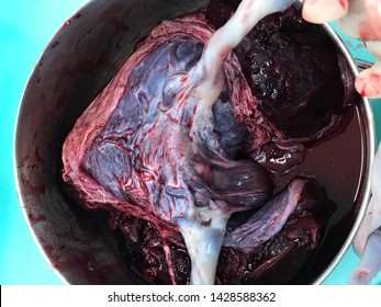 Placenta of an uncomplicated monochorionic monoamniotic twin pregnancy, delivered at 37 weeks of gestation.
