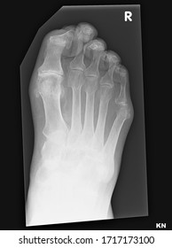 Plain foot x-ray showing severe osteoarthritis at the first metatarso-phalangeal joint with bunion deformity