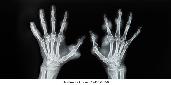 Plain radiograph of both hand in anteroposterior projection on dark background.Film shown rare case of gouty arthritis with tophi. Bone was destruction erosion on digit. Gout attack