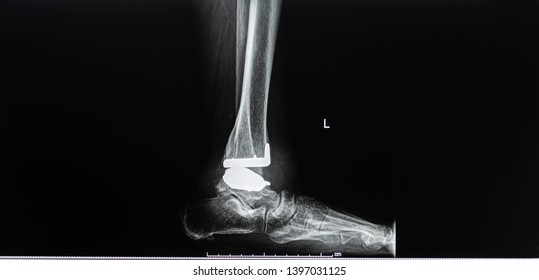 Plain radiography of ankle joint after total ankle replacement surgery in lateral projection. The film shown the prosthesis in good position. Dark background. Radiology and medical concept.