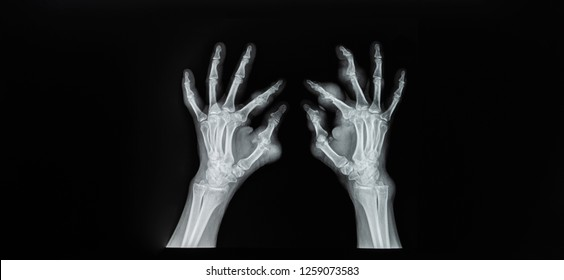 Plain X-ray of both hand in anteroposterior / AP projection on dark background. Film shown rare case of gouty arthritis with tophi. Bone was destruction erosion on phalanx.