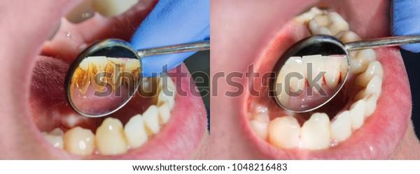 Plaque des Patienten, Stein. Zahnheilkunde Behandlung der Zahnplatte, professionelle Mundhygiene. Das Konzept der Schädigung des Rauchens und der Zähnenzäscherung