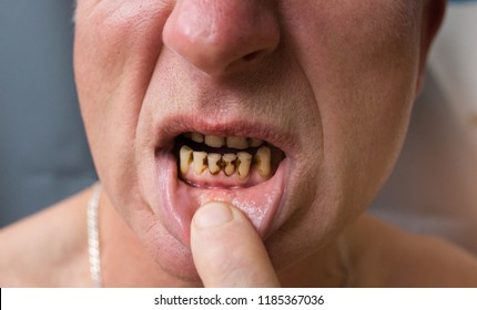 Plaque teeth cavities and paradontosis in the man's mouth. Dental decay problems and bad smile. Dentist treatment concept.