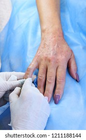 Plasmolifting hands. Injections for rejuvenation and skin regurgitation from human plasma. A modern beauty treatment.