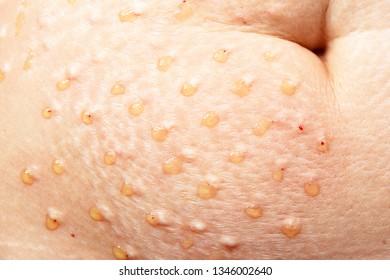 Plasmolifting. Injections for rejuvenation and skin regurgitation from human plasma. A modern beauty treatment
