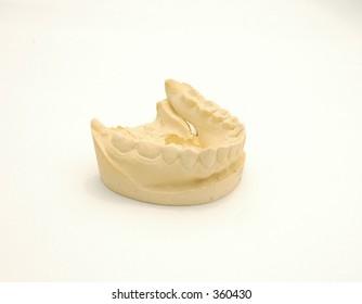 Plaster cast of lower teeth