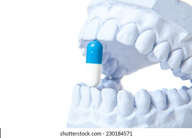 Plaster cast of teeth with pill