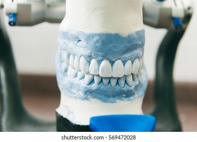 plaster cast of teeth with removable partial denture; showcasing