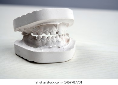 plaster model  of teeth on bright ground