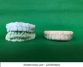 Plaster print of full teeth to make dental guard for bruxism treatment isolated on green background.
