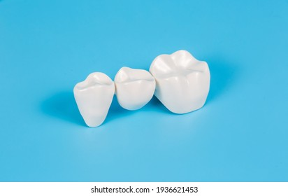 Plastic dental crowns, imitation of a dental prosthesis of a dental bridge for three teeth on a blue background.Visual aid for dentists and patients.