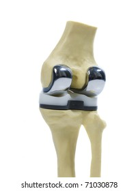 plastic  study model of a knee replacement
