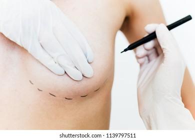 Plastic surgeon at work