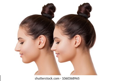 Plastic surgery. Beautiful Female Face Comparison Before and After complex Plastic Surgery - Liposuction of the Chin, Nose and Ear Plastic, Plastic Surgery Buccal fat Removal. Before and after
