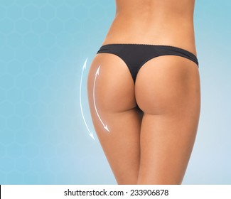 plastic surgery, beauty, people and bodycare concept - close up of female legs in black bikini panties over blue background