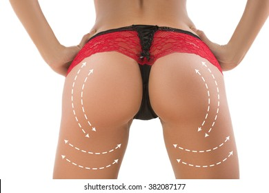 plastic surgery, beauty, people and bodycare concept. female ass with lines