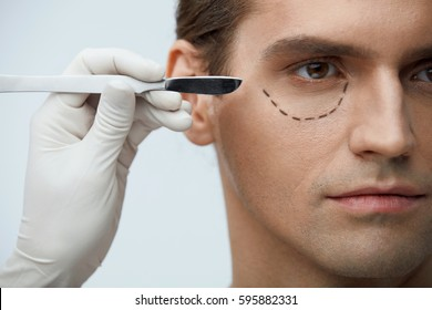 Plastic Surgery. Closeup Of Handsome Male Face With Black Marks On Skin Under Eye. Portrait Of Young Man With Lines Getting Plastic Operation On Eyelids, Facial Beauty Procedure. High Resolution