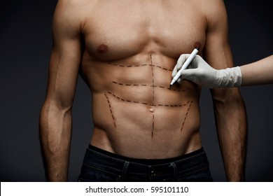 Plastic Surgery. Closeup Of Young Man's Fit Torso With Surgical Lines On His Body Before Beauty Operation. Doctor's Hand In Sterile Glove Drawing Black Marks On Male Patient Body. High Resolution