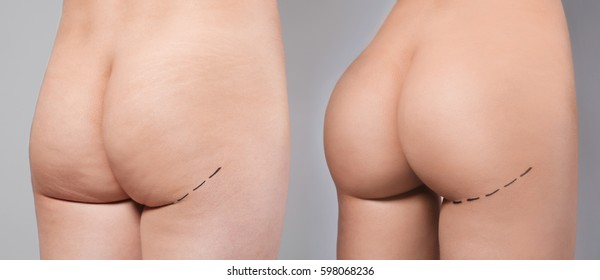 Plastic surgery concept. Female body before and after operation on gray background