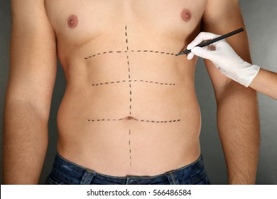 Plastic surgery concept. Female hand marking male belly before operating