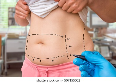 Plastic surgery doctor draw lines with marker on patient belly at clinic