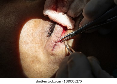 Plastic surgery of the eyelid in operating room, blepharoplasty.