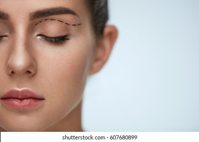 Plastic Surgery Operation. Closeup Beautiful Young Woman Face With Fresh Skin And Perfect Makeup On White Background. Female Face With Black Surgical Lines On Eyelids. High Resolution