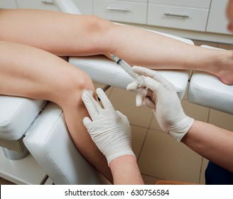 Platelet-rich plasma injection of the knee