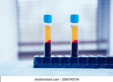 Platelet-Rich plasma preparation. Plasma in syringe. Centrifuge. Background
