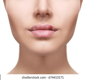 Plump female lips with herpes sore isolated on white.
