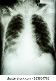 """""""Pneumonia with respiratory failure""""  film chest x-ray of patient with endotracheal tube,catheter. he was treated in ICU."""