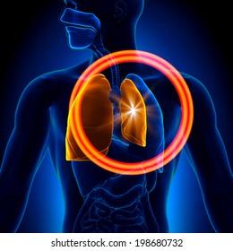 Pneumothorax - Collapsed Lung Anatomy