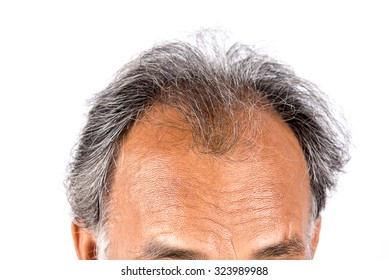 Point of focus lose one's hair glabrous baldy loss hairline men.
