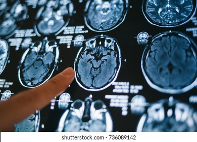 Pointing on magnetic resonance image of brain. MRI head scan. Medicine, science