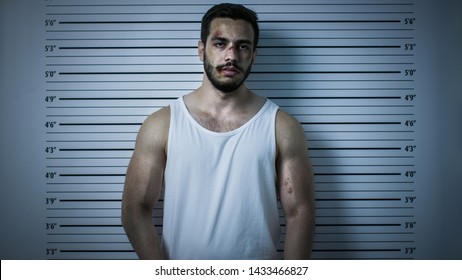 In a Police Station Arrested Beaten Man Poses for Front View Mugshot. He Wears Singlet, is Heavily Bruised. Height Chart in the Background. Shot with Dark Cold Lights and Vignette Filter.