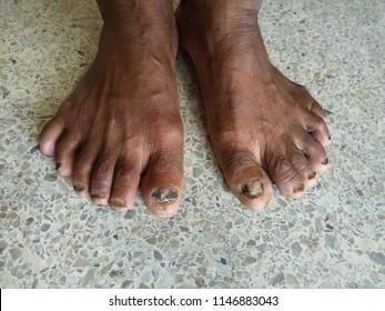 Polydactyly of foot.