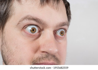 A pop-eyed man with Graves' disease toxic diffuse goiter, hyperthyroidism. Enlarged thyroid gland and exophthalmos bulging eyes. Endocrine system disease, endocrinology. - Shutterstock ID 1955682559