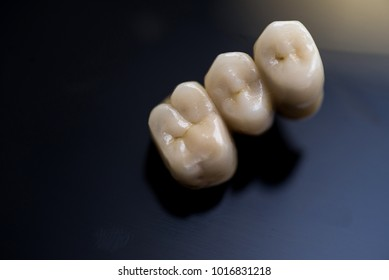 porcelain crowns on black. dental office.