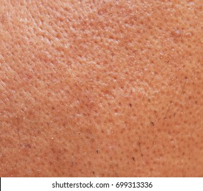pores and oily on surface young asian man face skin do not take care for a long time